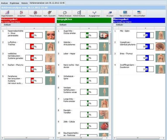 Beispiel einer Kohärenzanalyse mit dem TimeWaver, die die Über- und Unterregulierten Körperstellen anzeigt